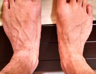 how to stop bulging veins in foot