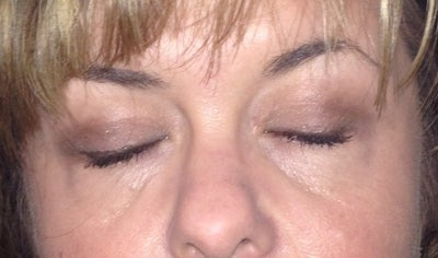 Upper/Lower Bleph with Chemical Peel Under Eyes ...