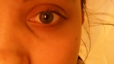 Dark Sunken Circles Under my Eyes, I'm 17 Years Old and Do ...