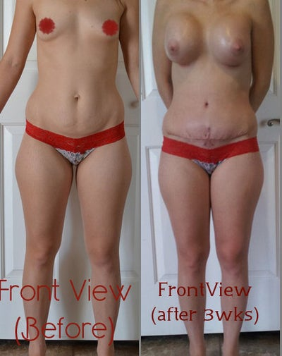 23 Days & Before/After Pic--
