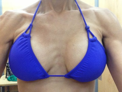 6 Weeks Post Op Breast Augmentation. Can This Be Fixed ...