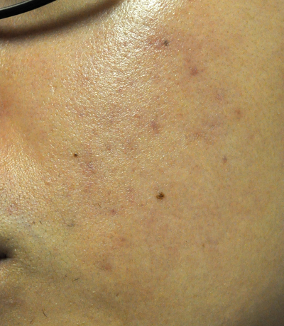 how to get rid of folliculitis scars