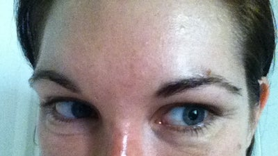 saggy loose lower eyelids from juvederm then hyaluronidase