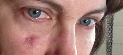 Mycobacterial Infection after Blepharoplasty - Dealing ...