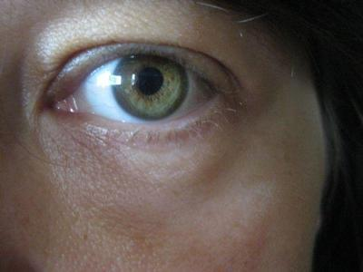 how to get rid of eczema on eyelids