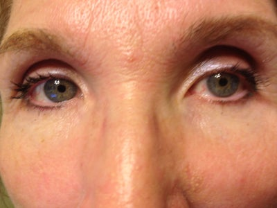 Very Sunken Eyes. What Are My Options? (photo) Doctor ...