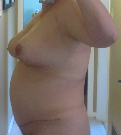 Opinion you cost of breast reduction in canada