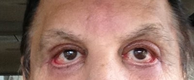 Drooping lower lid - Eyelid Surgery forum