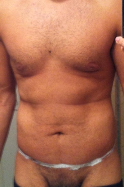 Gynecomastia Before And After Weight Loss