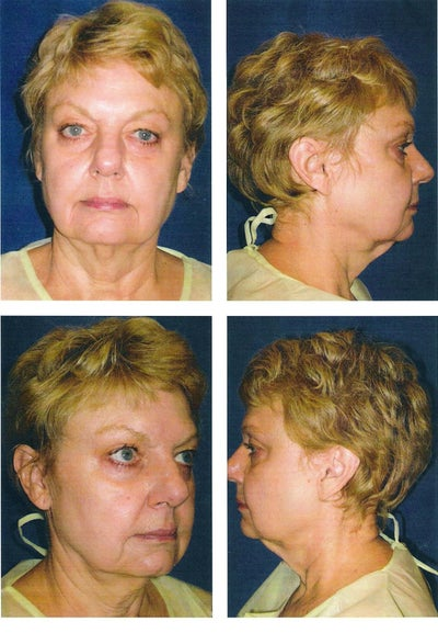 lifestyle lift reviews Lifestyle lift's business model was based on the promise of a more affordable mini face-lift, performed under local anesthesia the average cost of the procedure was.