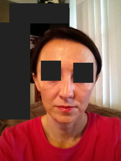 Rhinoplasty 3 Weeks Out, Think Doctor Nitched Bottom of my ...