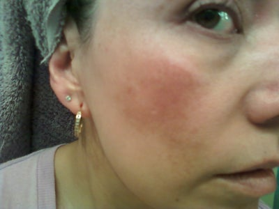 How can i get rid of spot scars on my face book