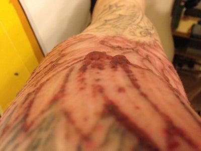 Half Sleeve Tattoo Removal Nottingham Md Tattoo