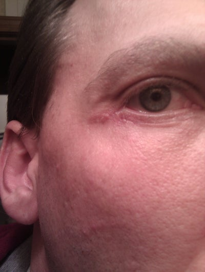 Eye irritation in outer corner/4 weeks post lower Bleph - Eyelid