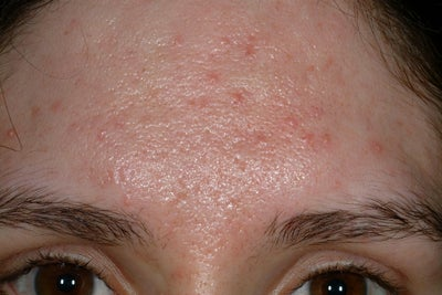 Acne Scars Photo From Mary P Lupo Md New Orleans