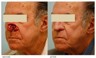 Asian face reconstructive surgery