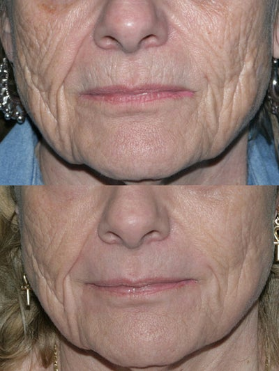 fraxel repair with c02  erbium lasers for upper lip