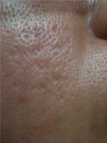 to remove ice pick or open pore scars? - Acne Scars Treatment forum