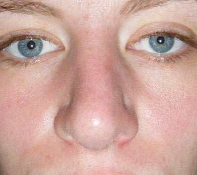 Asymmetrical or Crooked Nose After Rhinoplasty ...