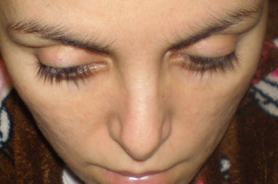 Another revision to straighten crooked nose? - Revision ...
