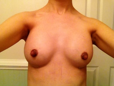 Bethesda breast augmentation