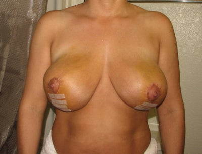 reduction surgery reviews breast