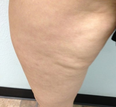 Leg Lipo Revision for Lumps? (photo) Doctor Answers, Tips