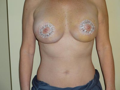 Mini Ultimate Breast Lift - Breast Lift review - RealSelf  Mini Ultimate B...