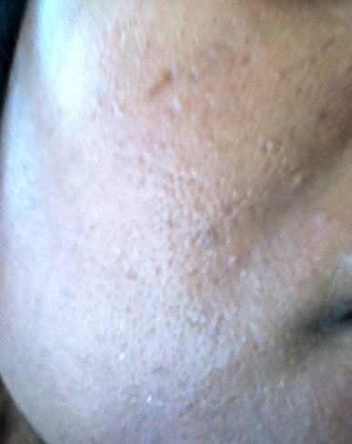 EMatrix IR or RE for Acne Scars and Discoloration of Skin (Med Dark ...