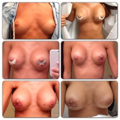 breast implant friction