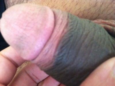 Penis Head Color 84