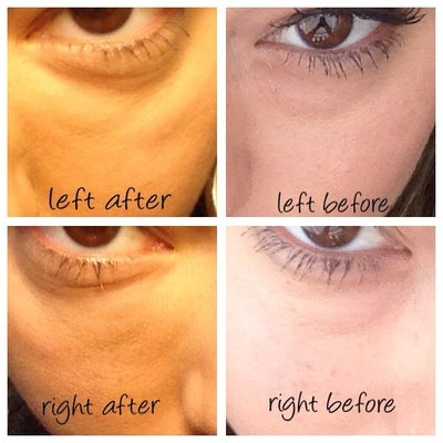 how to get rid of puffy cheeks under eyes