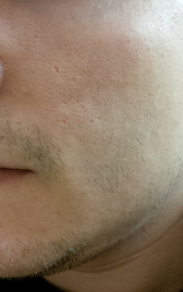 large pores on nose - photo #49