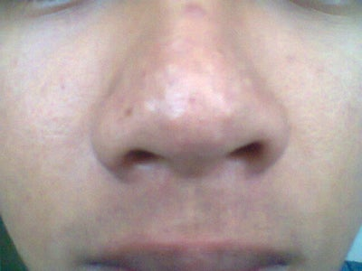 large pores on nose - photo #44