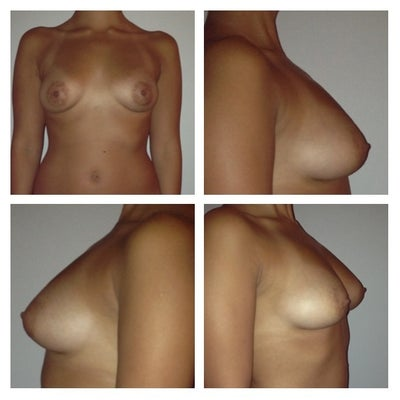 Breast reduction memphis tn apologise