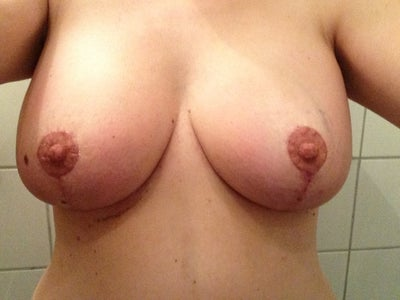 Reduction reviews breast natural