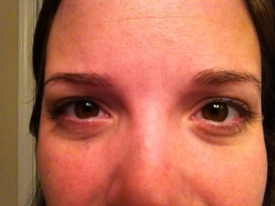 What can I do to treat my purple circles and puffy under eyes. Is ...
