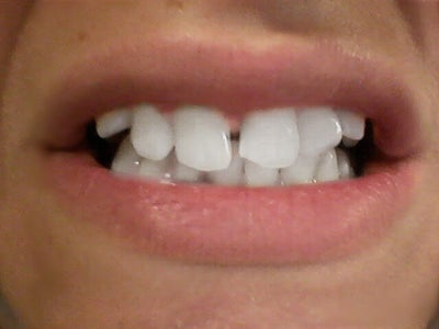 Can I Get Invisalign? How Long Would I Have To Wear Them ...