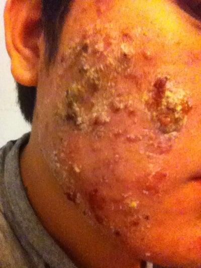 Acne.org   acne community  acne treatment store
