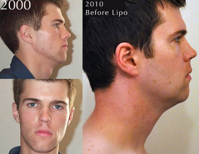 how to get rid of the fat under my chin