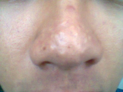 Best Treatment for Acne scars on the nose and large pores