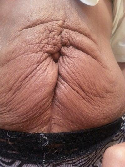 5 Weeks Po Tummy Tuck, Umbilical Hernia Repair - Atlanta ...