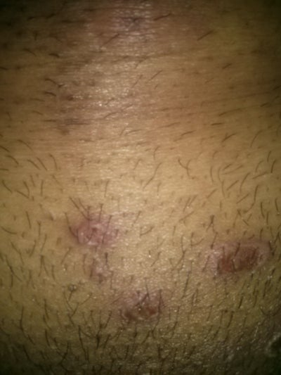 Small sores on the head of the penis