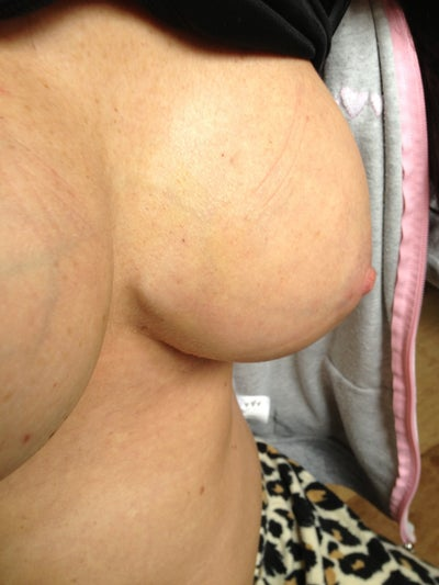 My right breast is sore