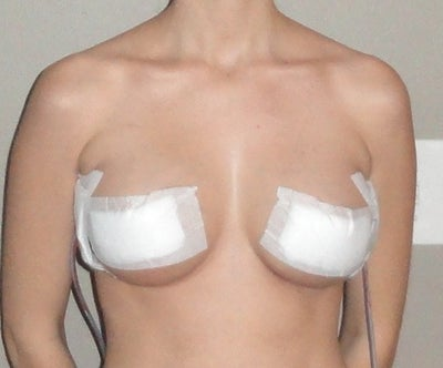 Breast Implant Under Muscle