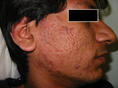 Severe Acne Scars - Best option? (photo) Doctor Answers, Tips