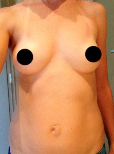 1000cc Saline Breast Implant Photos  XL Breast
