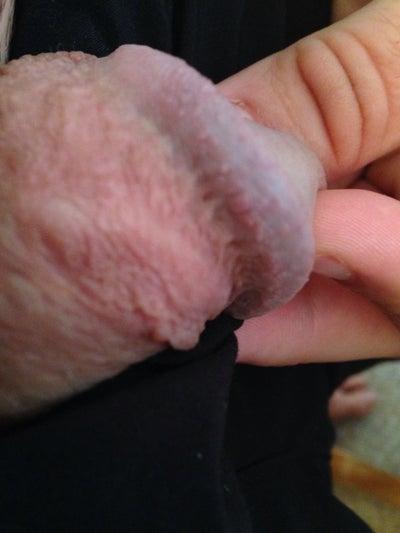 Penis Head Swollen 117
