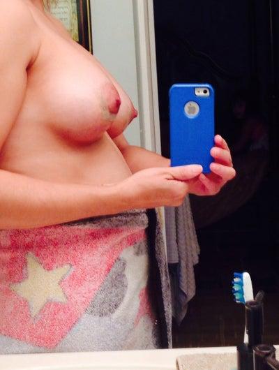 Will a 475 cc breast implant yeild a