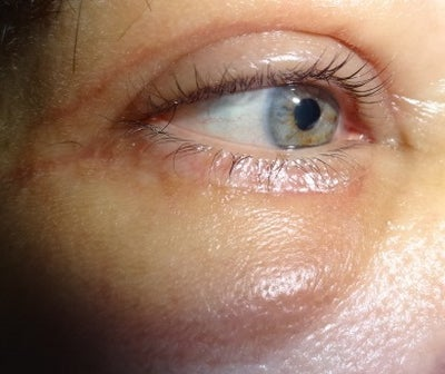 what causes swelling under the eyes